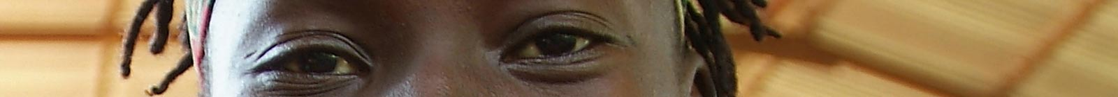 Eyes of Cloe, Conakry, Guinea.